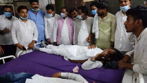 लाठी चार्ज में राजद कार्यकर्ता घायल